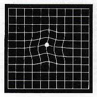 Amsler Grid showing disorted lines
